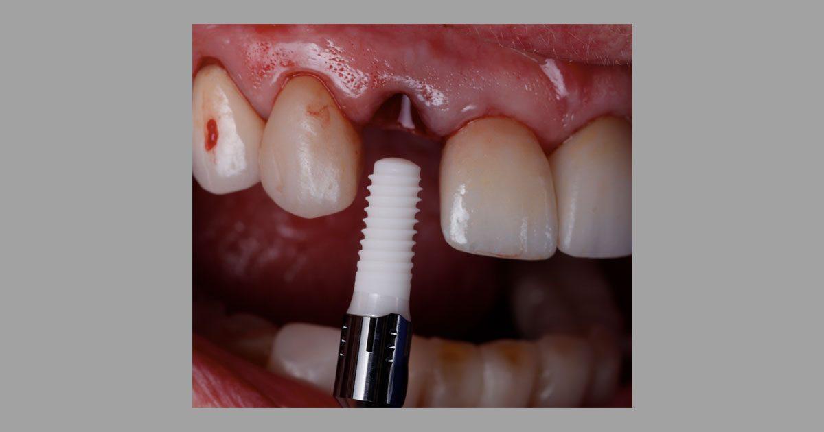 Implant-insertion