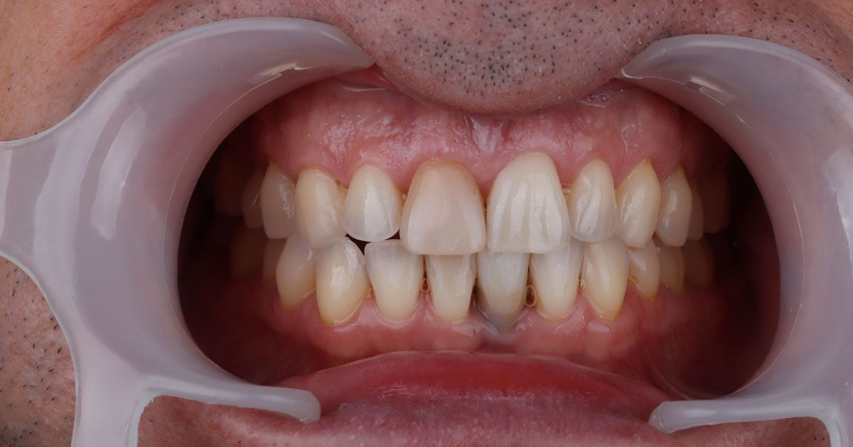 dental-photography