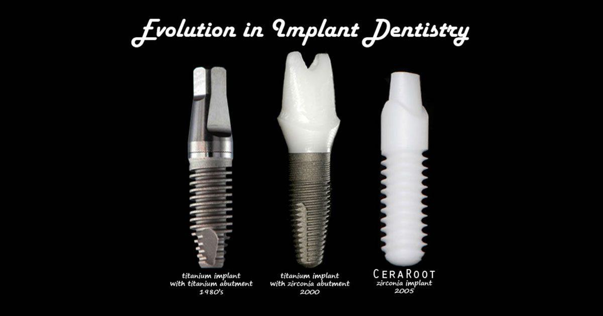 evolution-in-implant-dentistry